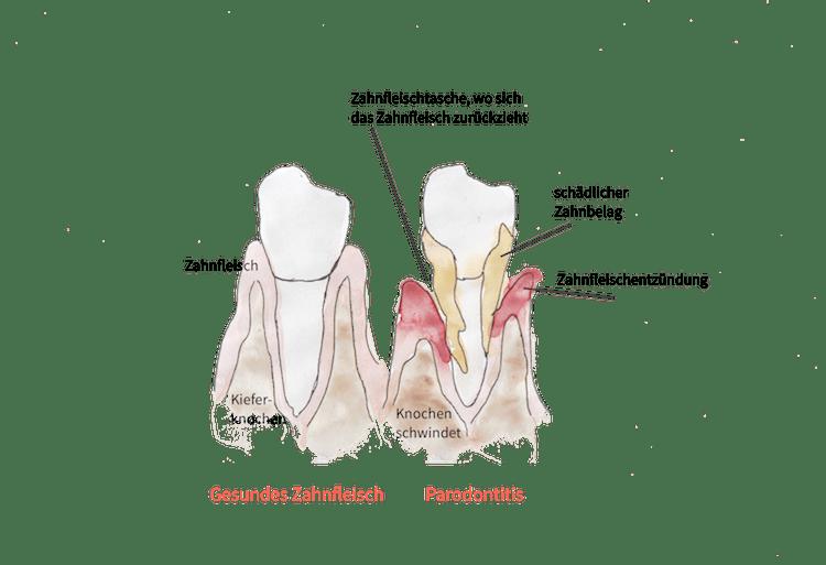 Grafik: Wie Parodontose aus einer unbehandelten Zahnfleischentzündung entsteht; healthandthecity.de