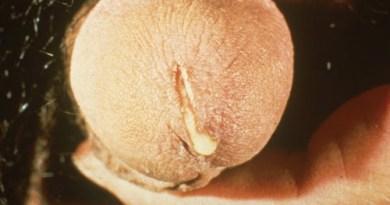 Gonorrhea Symptom