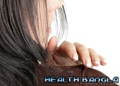 dandruff-in-hair-woman
