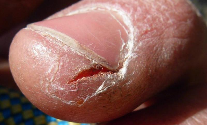 Dry Hand Care
