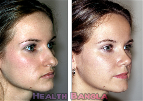 Rhinoplasty-Nose