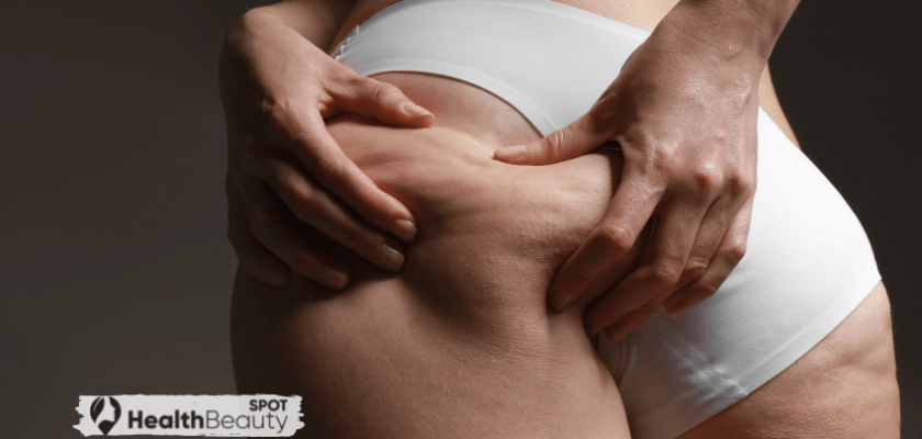 Three Reasons You Can't Get Rid Of Cellulite