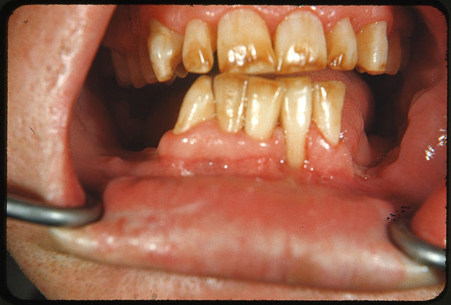 Severe fluorosis: brown discolored and mottled enamel of an individual from a region with high levels of naturally occurring fluoride
