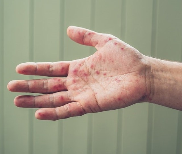 Right Hand With Blisters From Hand Foot And Mouth Disease