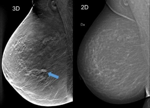 Using breast tomosynthesis (3D screening) in the image to the left (one of...