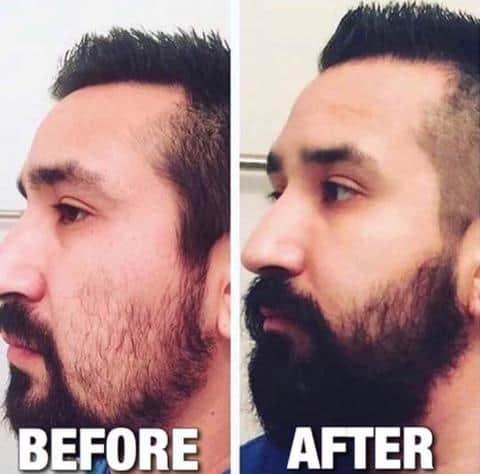 Beardo Beard Vs Ustraa Beard Oil - Beard Growth