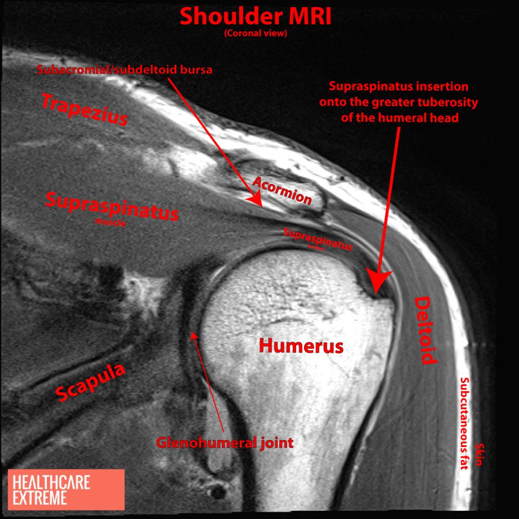 MRI COR Supraspinatus