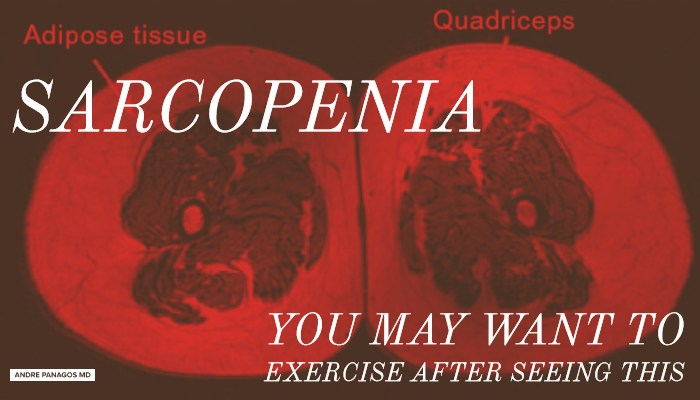 Sarcopenia, Why the disease affects all of us