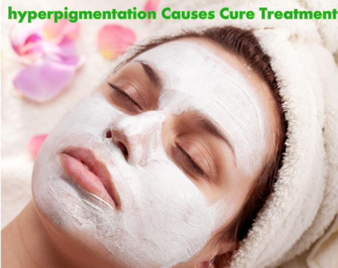 hyperpigmentation Causes Cure Treatment