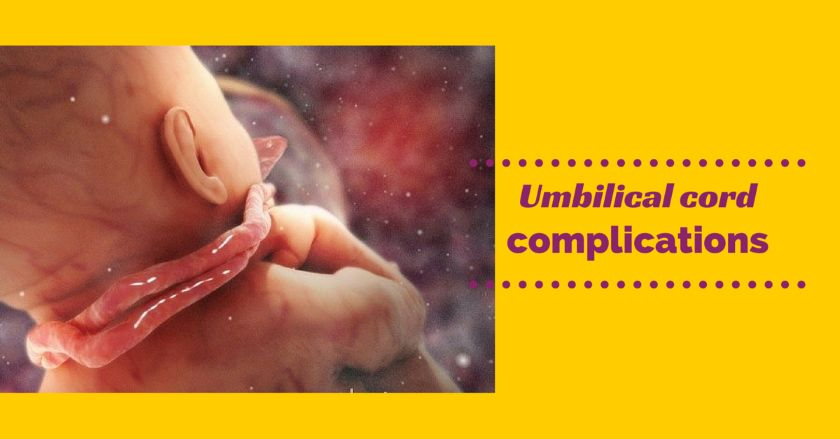 Umbilical cord complications - Health Care Fix