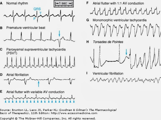 Irregular Heartbeat - Causes Symptoms Treatment What is ...