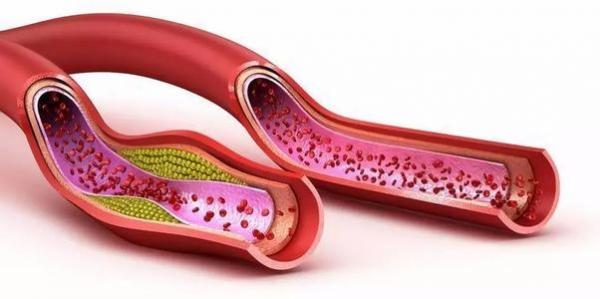 高血脂年輕化!平均每五人一人膽固醇超標!五類食物千萬要少吃! - 健康一點靈