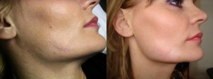 scar removal cream effects