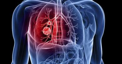 फेफड़ों के कैंसर से पीड़ित रोगियों को मिल सकती है निजात, करना होगा ये काम