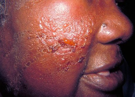 Erysipelas  Causes Pictures Treatment Infection Symptoms