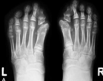 Fibrodysplasia Ossificans Progressiva  Pictures Symptoms