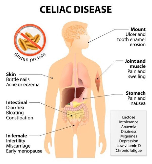 Coeliac disease or celiac disease