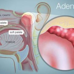 Ear Nose And Throat Diagram Car Trailer Wiring Pictures Of Adenoids