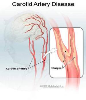Pictures Of Carotid Arteries