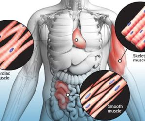How Fibromyalgia is associated with Muscle Spasms