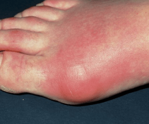Fibromyalgia and Foot Pain: Causes and Treatments
