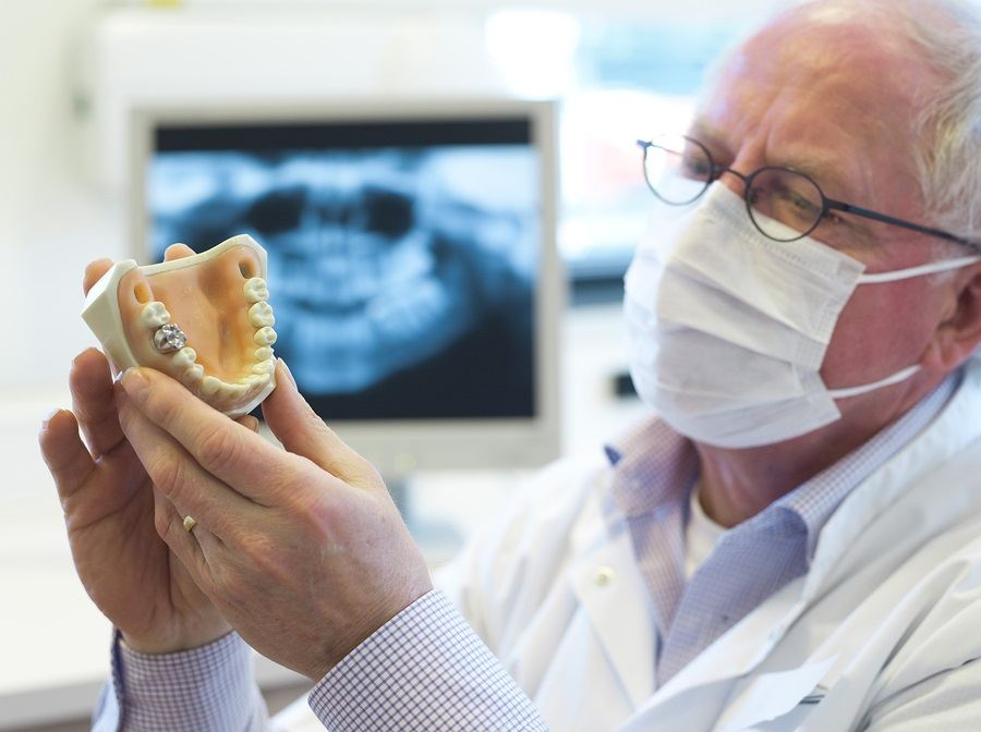 dentis-with-mercury-amalgam-model