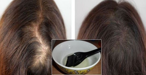 Castor Oil Hair Loss Treatment