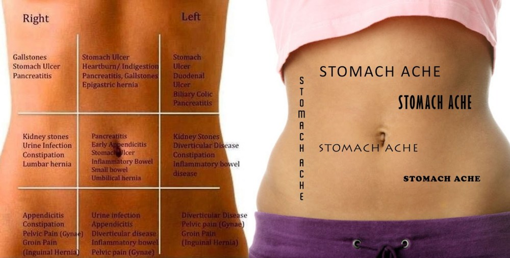 medium resolution of stomach pain chart to understand what your pain tells you