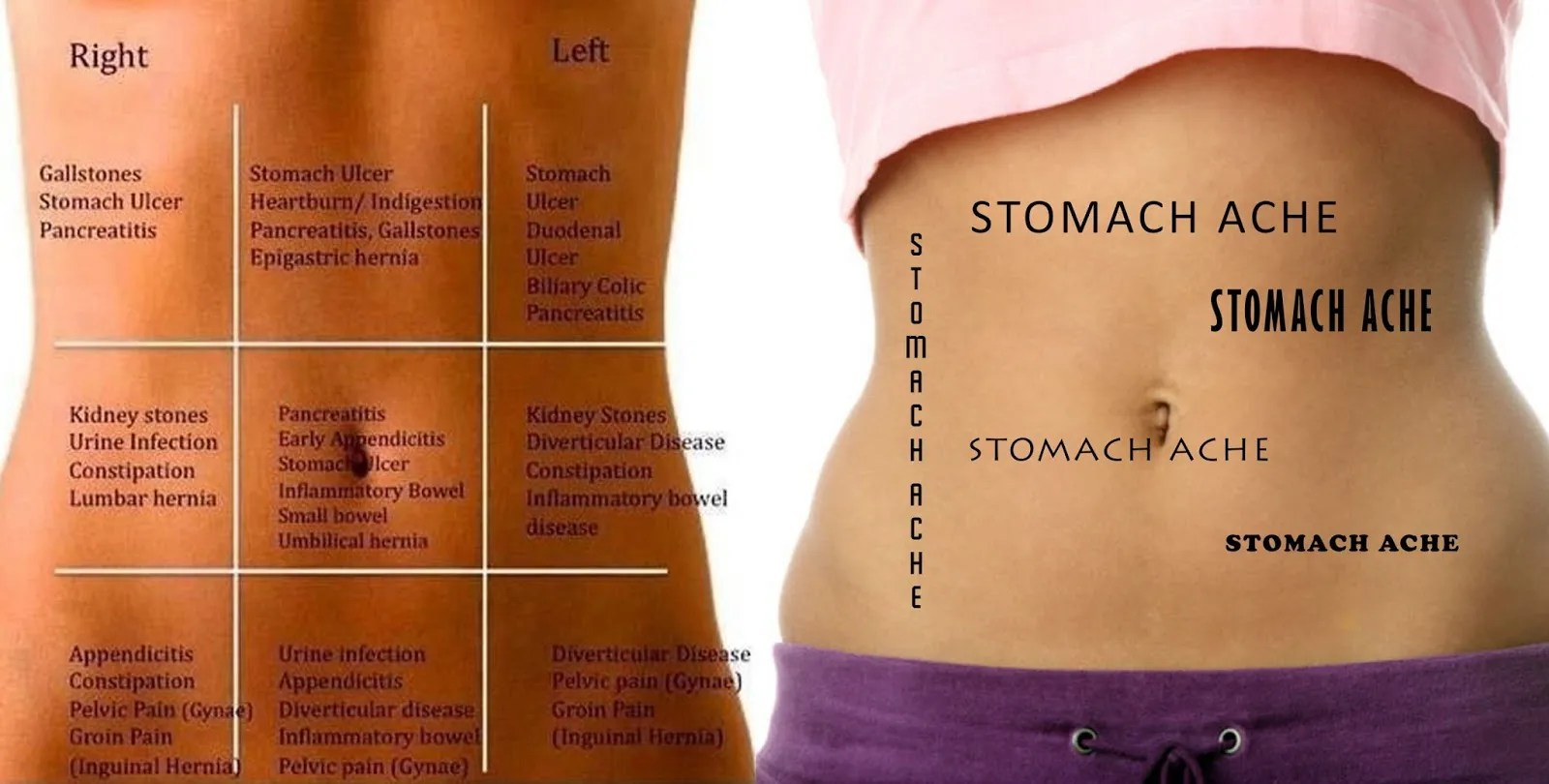 hight resolution of stomach pain chart to understand what your pain tells you