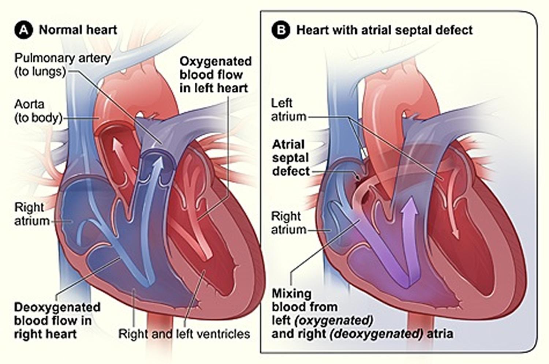 What Is Congenital Heart Disease