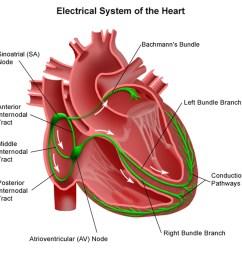 junctional bradycardia [ 1500 x 1500 Pixel ]