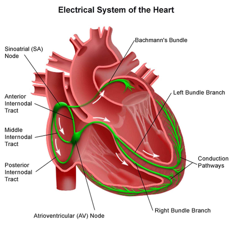 hight resolution of junctional bradycardia