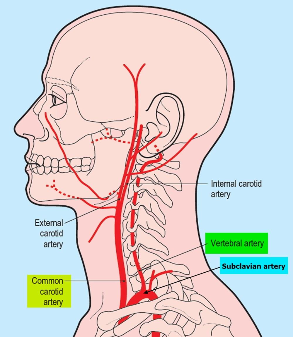 medium resolution of vertebral artery segments