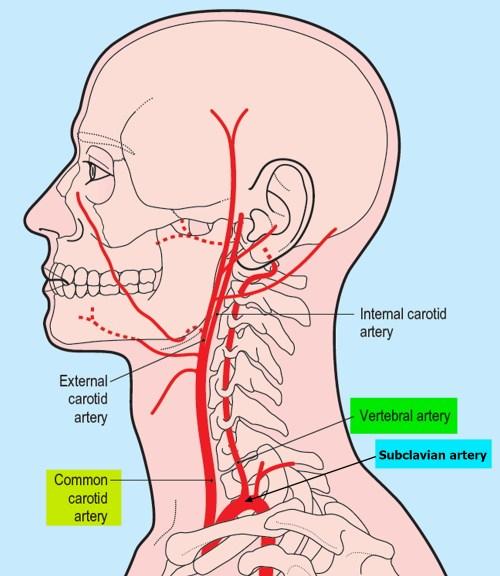 small resolution of vertebral artery segments