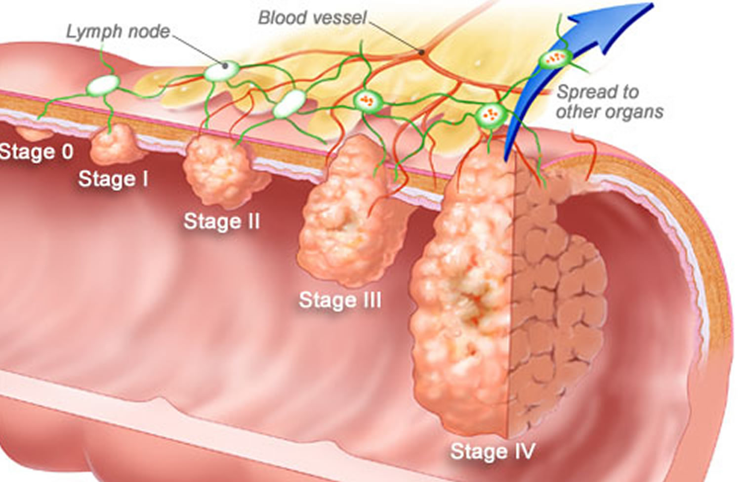 pathophysiology of colon cancer diagram 2001 dodge caravan starter wiring rectal bleeding and from the rectum causes