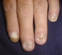Fingernails - Ingrown fingernails - Dark Line - Fingernail ...
