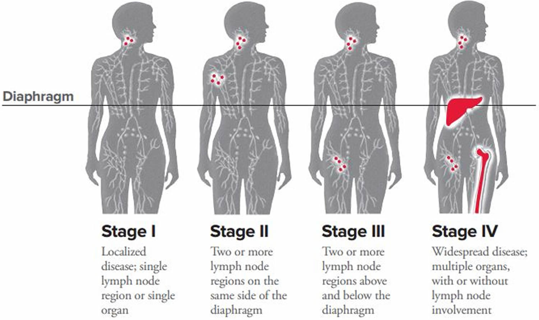 Lymphoma  Hodgkin  NonHodgkin Lymphoma  Survival Rate