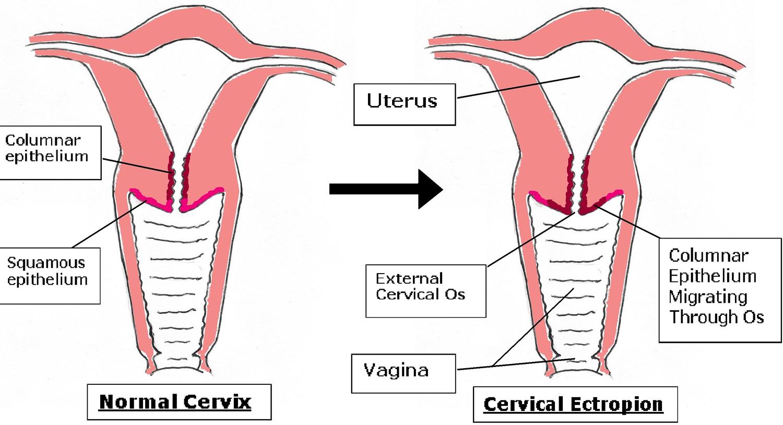 Cervical Ectropion - Causes Symptoms & Cervical Ectropion ...