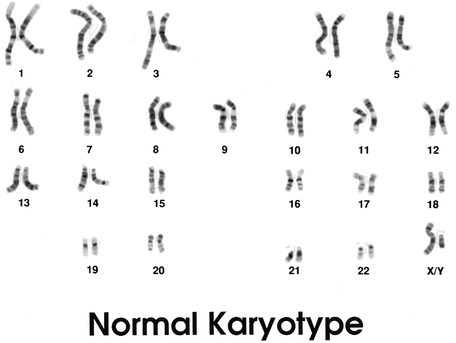 Chromosome Structure Worksheet