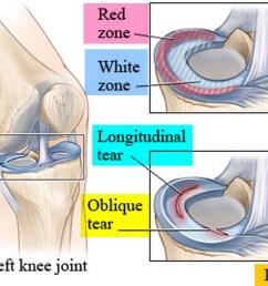 torn meniscus recovery [ 1500 x 978 Pixel ]