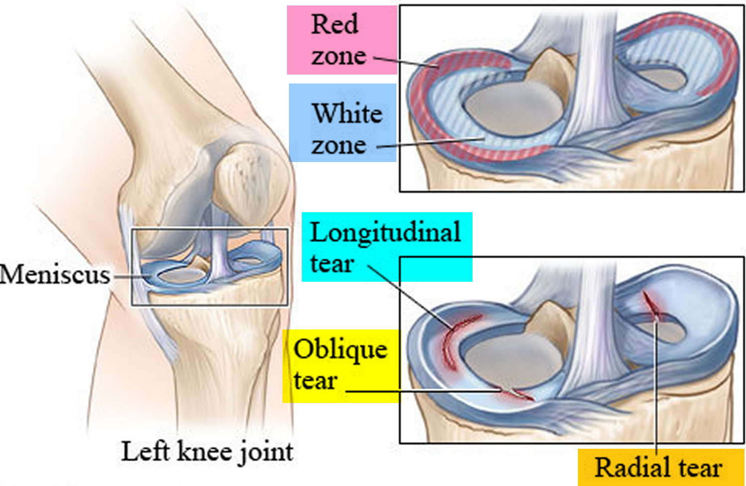 hight resolution of torn meniscus recovery