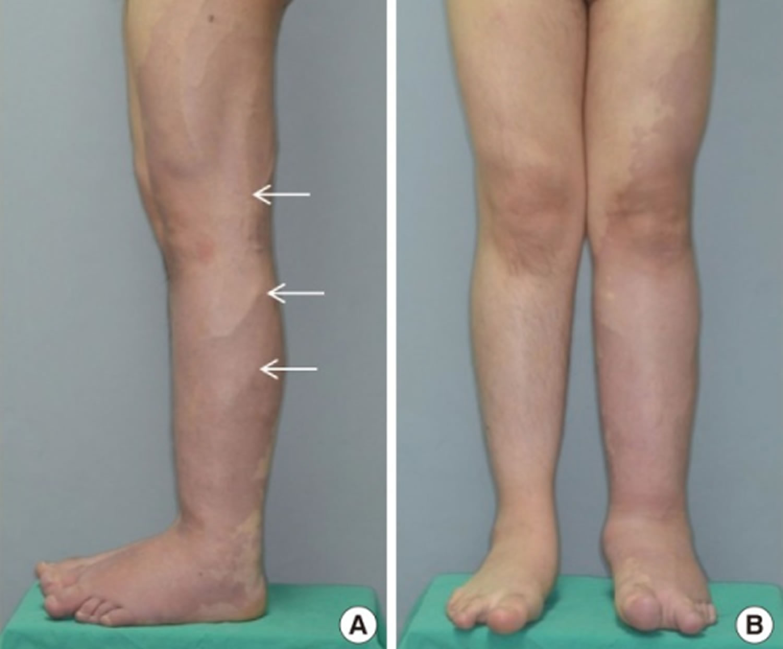 Klippel-Trenaunay Syndrome - Causes Diagnosis Prognosis ...