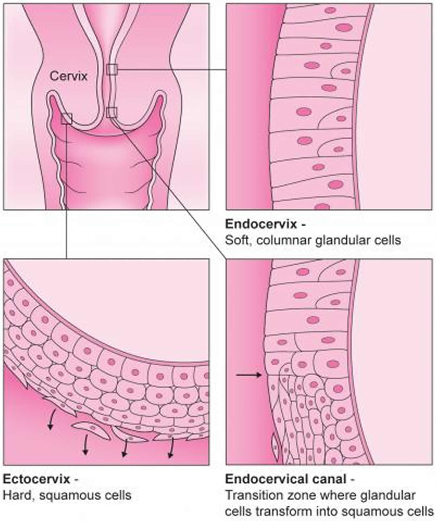 Colposcopy - Colposcopy Biopsy Results HPV Side Effects