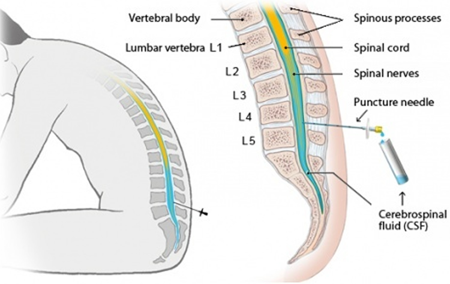 lumbar puncture diagram track with measurements procedure position side effects location