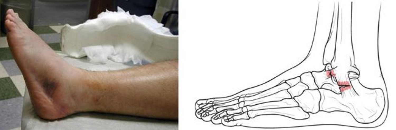 Sprained ankle symptoms sprained ankle treatment and ...