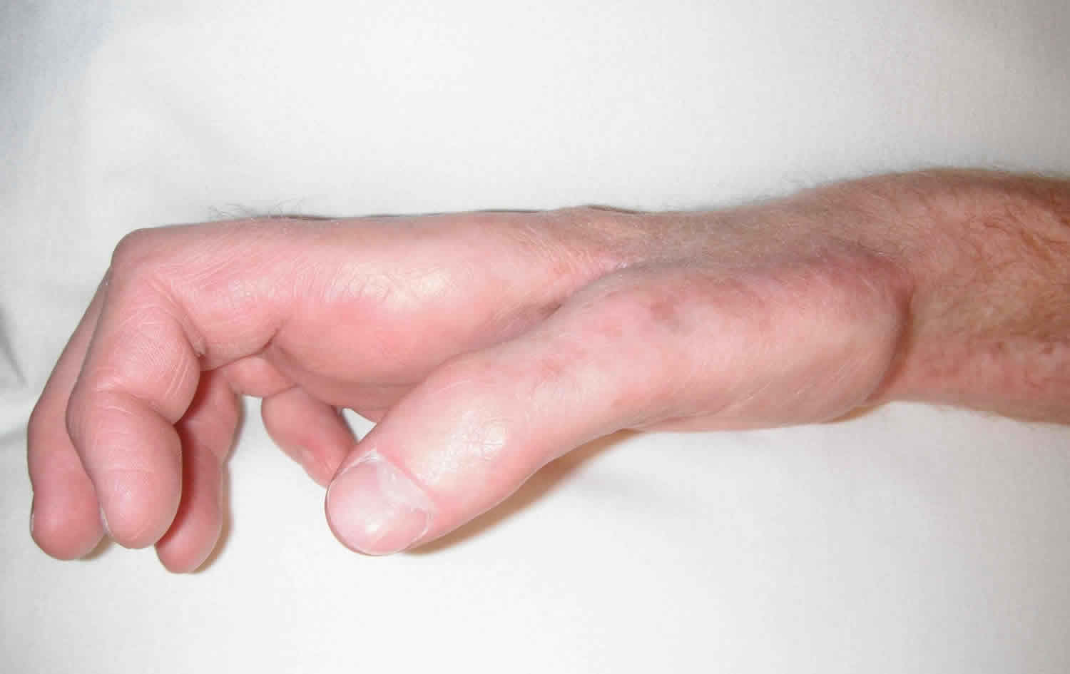 Claw hand causes signs symptoms diagnosis and claw hand ...