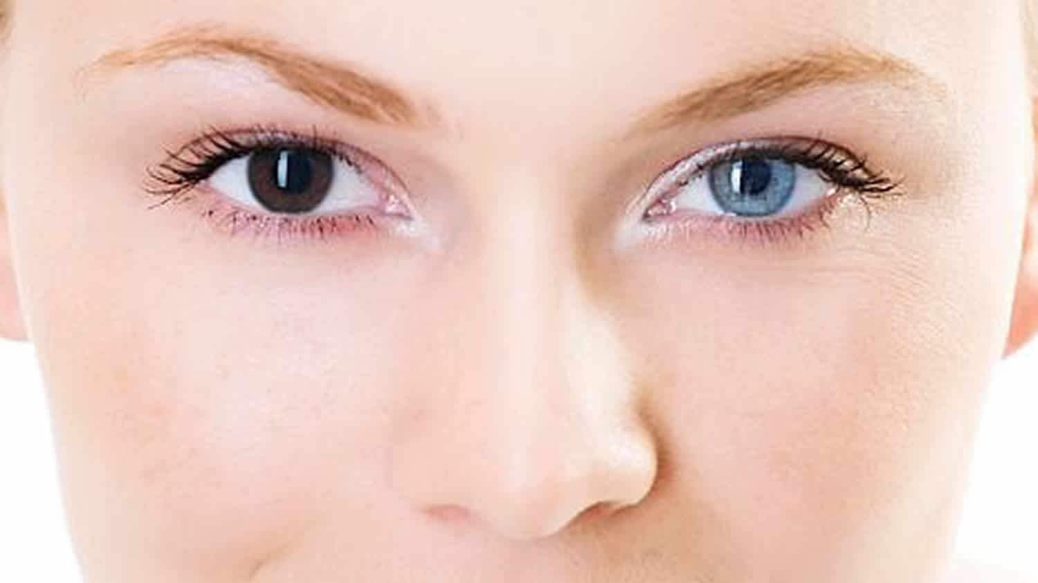 Heterochromia Eyes In Humans Causes How Rare Is