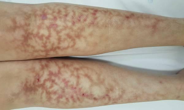 What Causes Mottled Skin Legs - Exploring Mars
