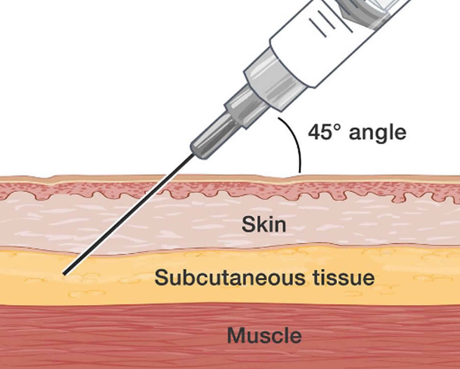 Subcutaneous injection sites how to give subcutaneous ...