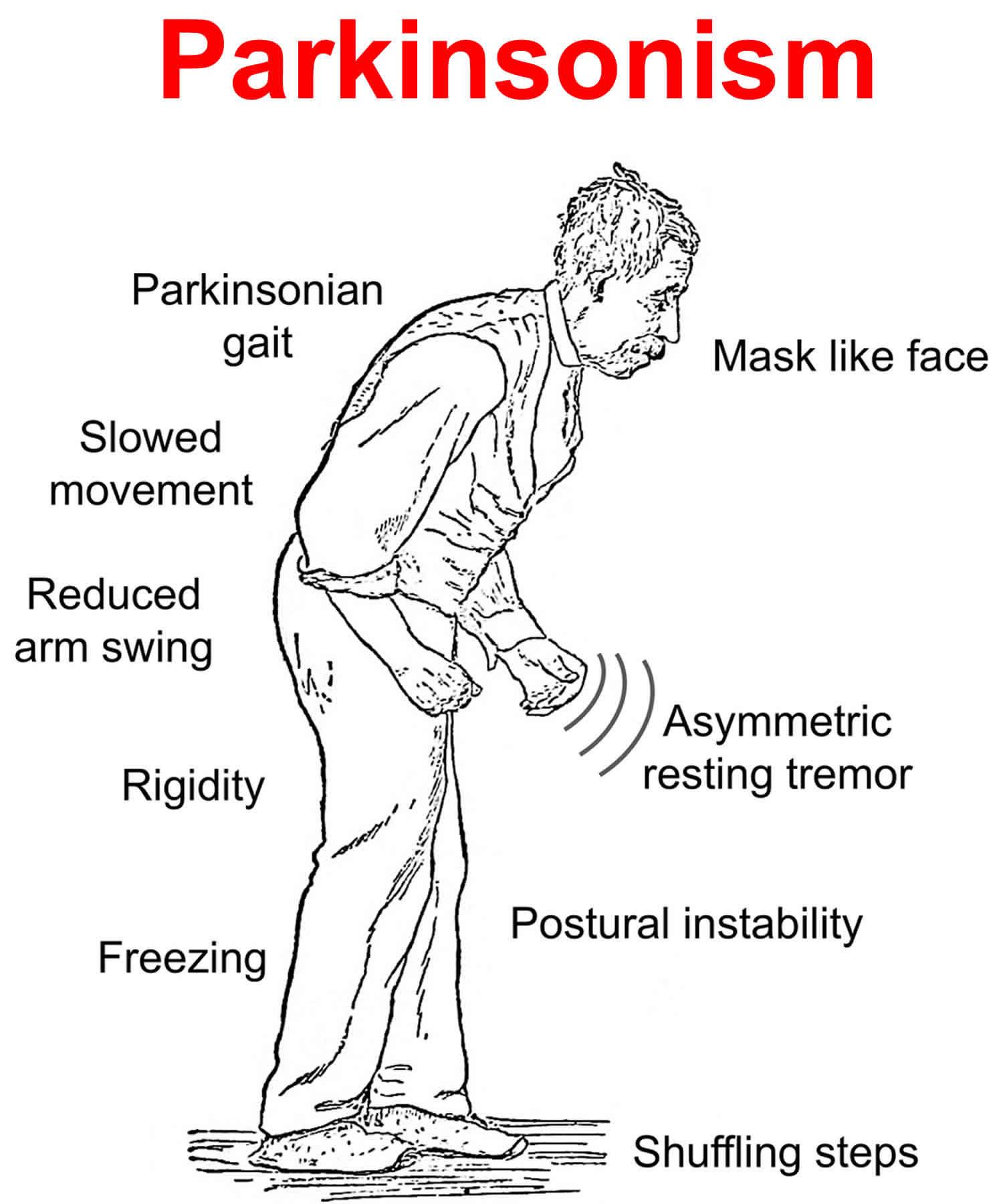 Parkinsonism causes, symptoms, diagnosis, treatment & life